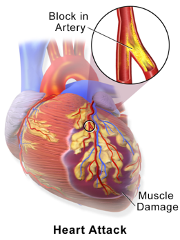 Illustration of a heart showing a Blocked artery and muscle damage